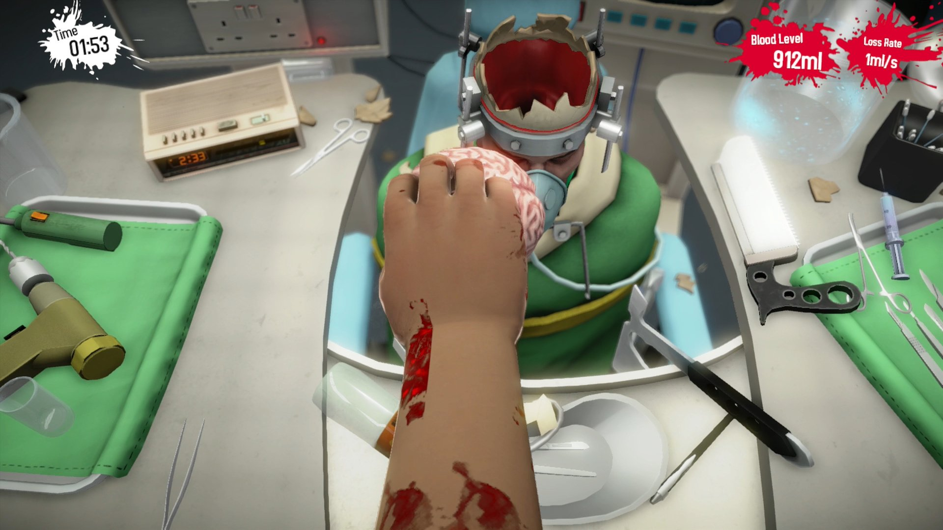 How To Become A Doctor In Usa >> Surgeon Simulator: Anniversary Edition (PS4 / PlayStation ...